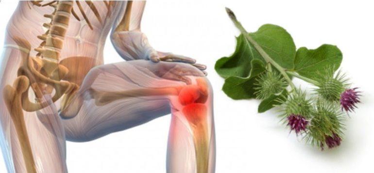 Лопух при артрозе коленного сустава