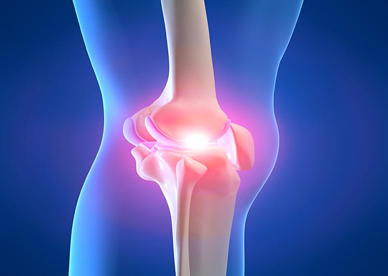 Наличие артроза в колене