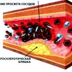 Атеросклероз - следствие употребления табака
