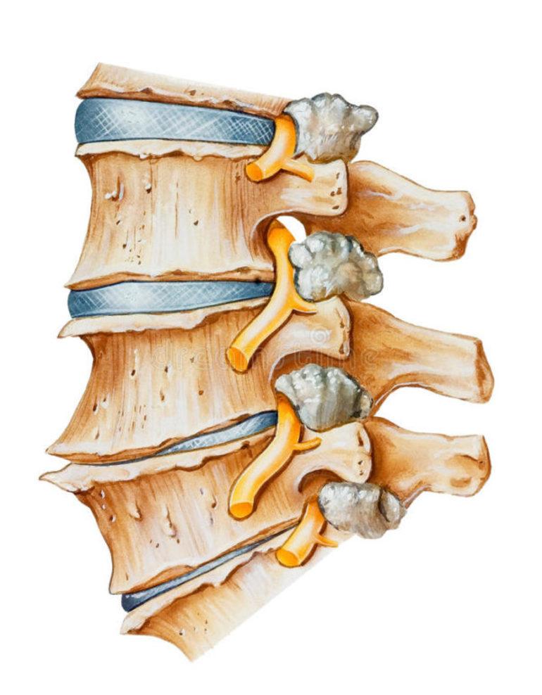 Медикаментозные методы лечения остеохондроза шейного