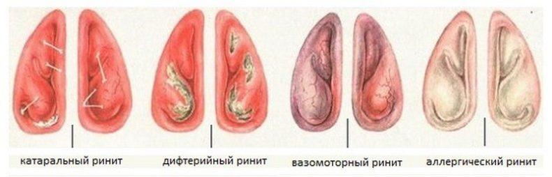 Ингаляции при аллергическом рините и аллергии