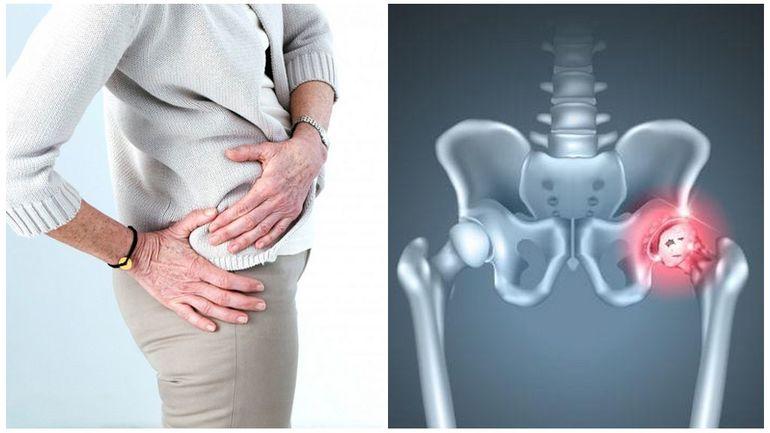 Уколы в тазобедренный сустав при артрозе препараты
