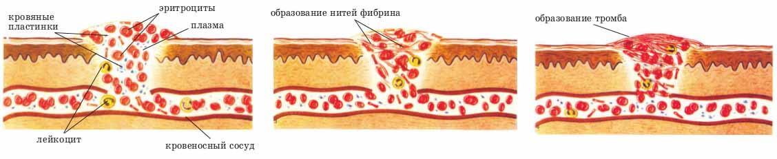 дипиридамол во время беременности