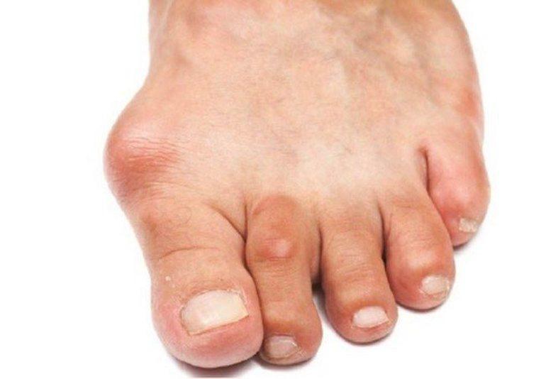 Артроз стопы ног