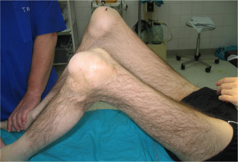 Артроз коленного сустава 3 степени положена ли инвалидность