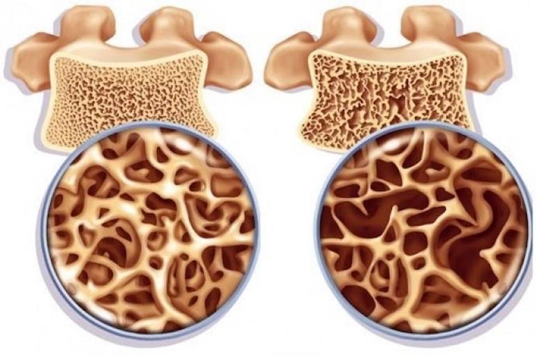 Препятствуют процессу разрушения костной ткани