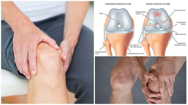 Как лечить артроз коленного сустава