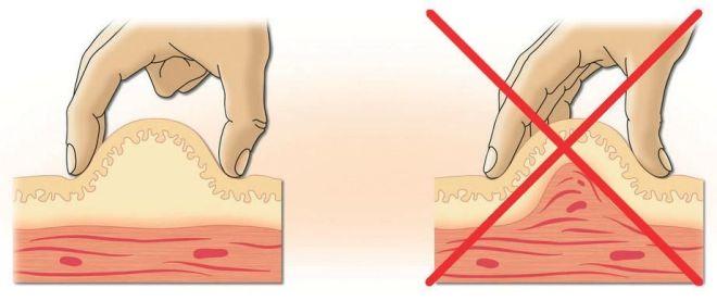 Как делать укол в живот подкожно