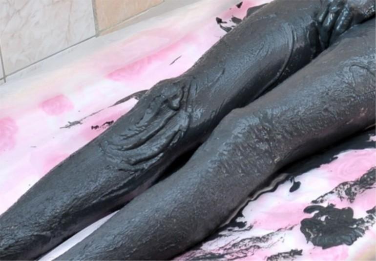 Грязевые ванны при посттравматическом артрозе