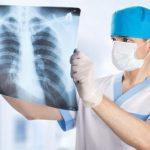 Рентген для обследования легких