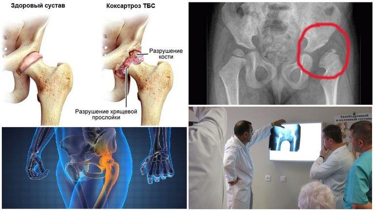 Причины развития коксартроза