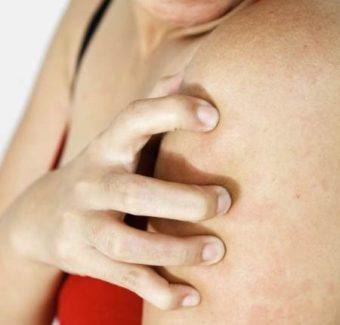 Сухость кожи тела: причины и лечение при климаксе