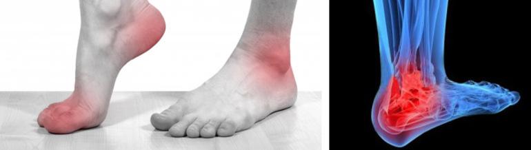 Чем лечить посттравматический артроз голеностопного сустава