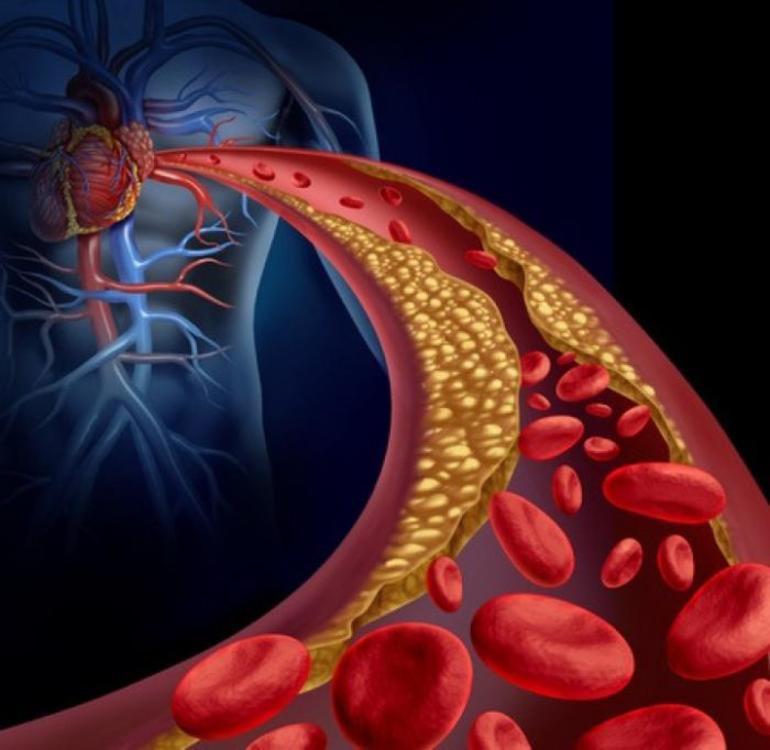 Заболевания кровеносных сосудов