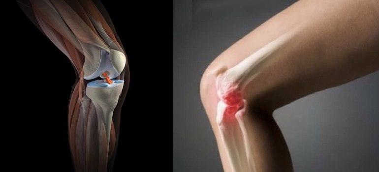 Снимок больного колена
