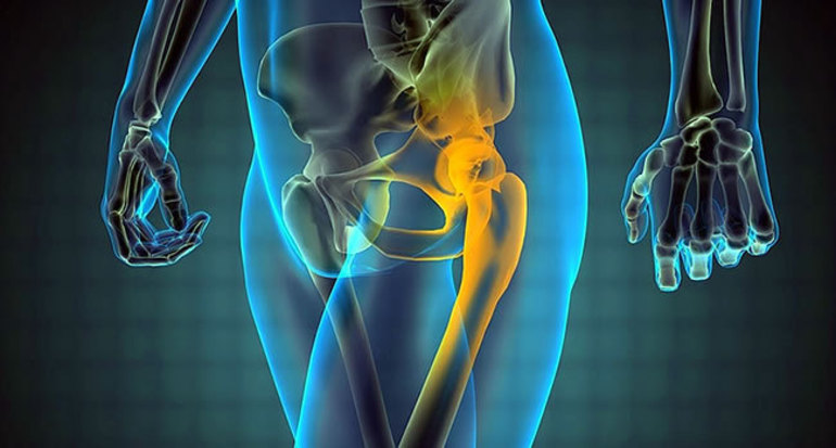 Особенности лечения коксартроза