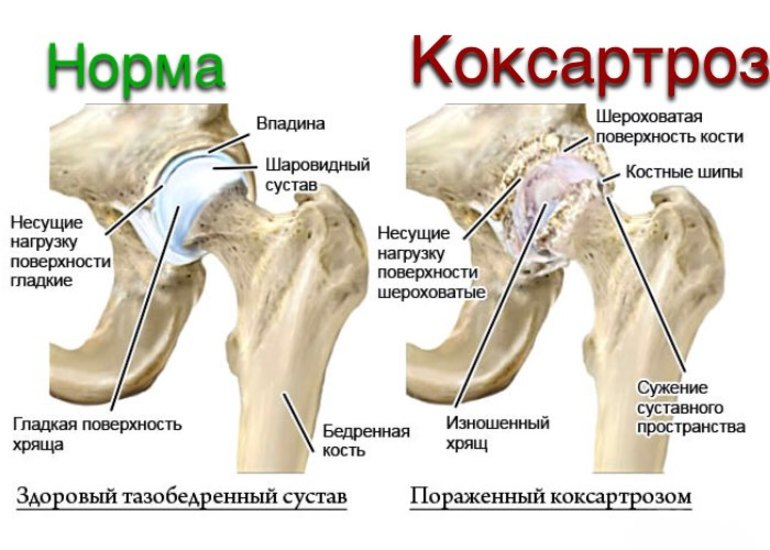 Симптомы и лечение коксартроз 3 степени