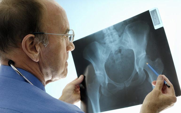 Точность рентгенодиагностики суставов