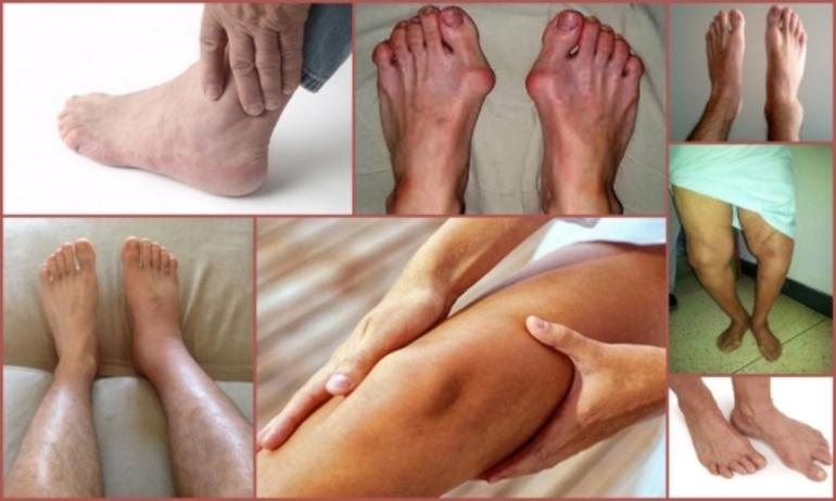 Различные артриты