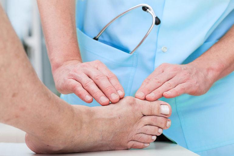 Физиотерапия и гимнастика для лечения артроза плюснефаланговых суставов стоп