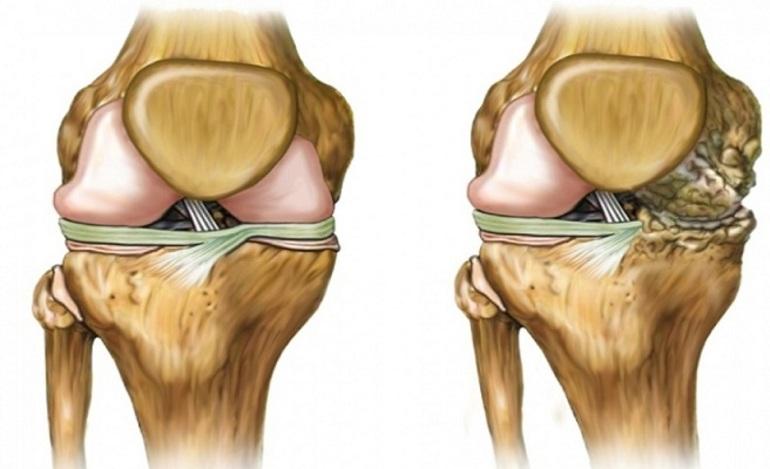 Как проявляется артроз коленного сустава