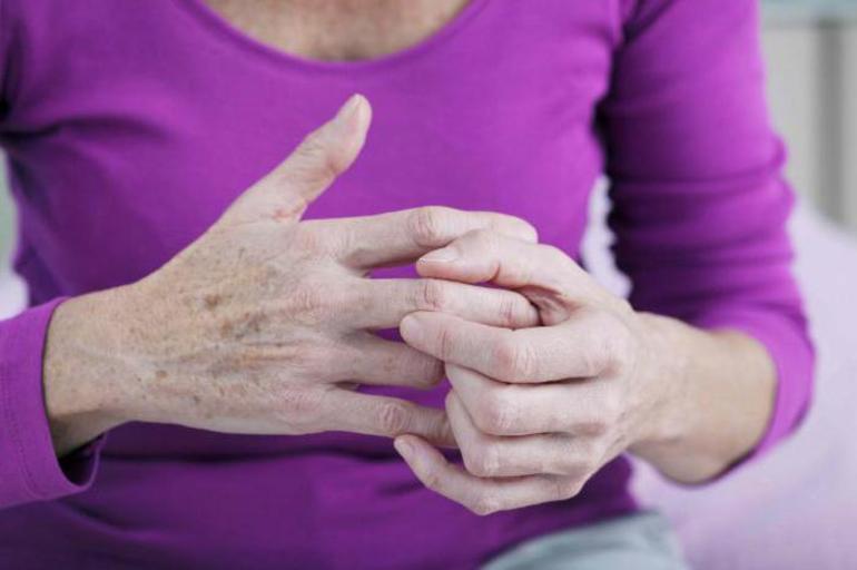 Как лечить артроз кистей