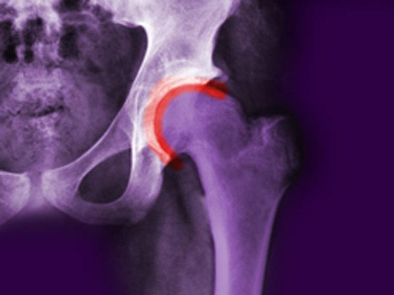 Артроз тазобедренного сустава лечение в домашних условиях