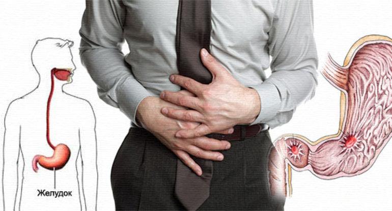 Противопоказания к применению мази Ортофен