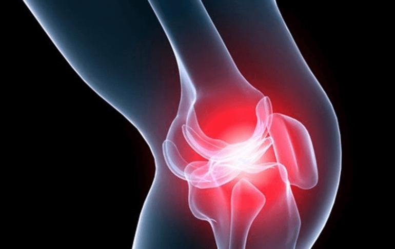 Как снять отек колена при артрозе