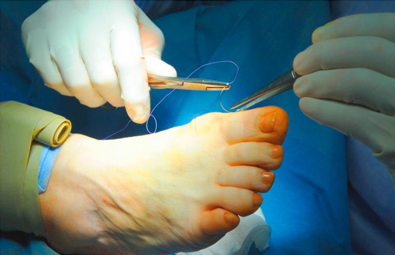 Хирургическая операция на плюснефаланговый сустав при артрозе