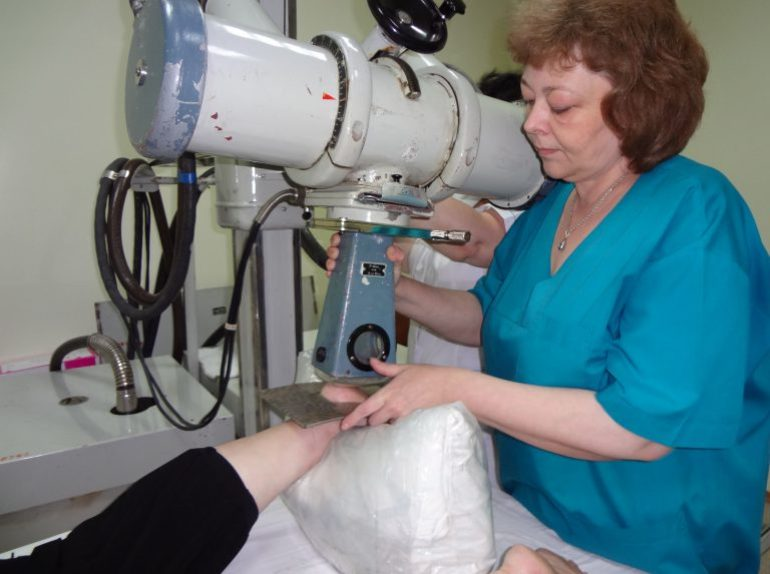 Терапия суставов рентгеновскими лучами