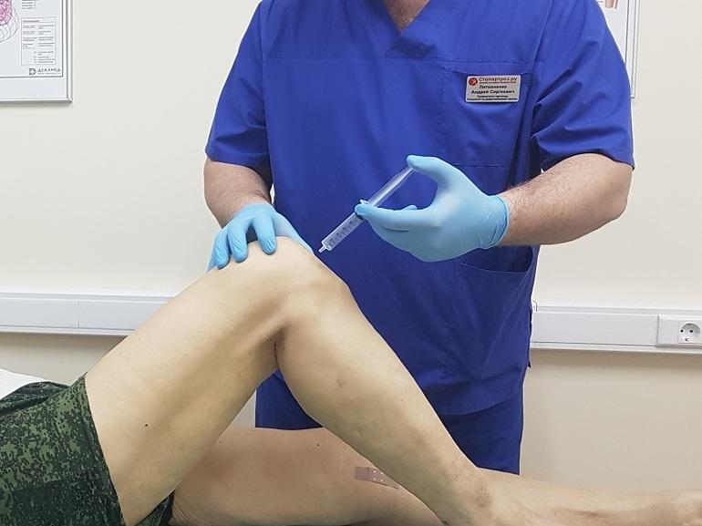 Процедура блокады колена при артрозе