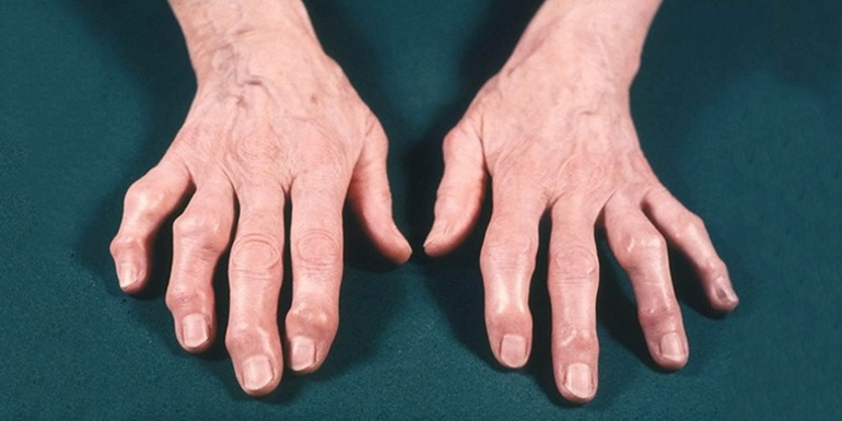 Медицина профилактика и лечение остеопороза