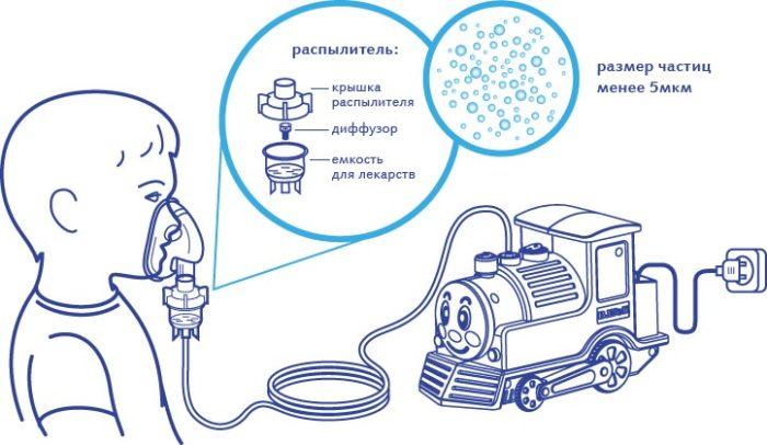Ингалятор паровозик b well wn 115k: инструкция по применению