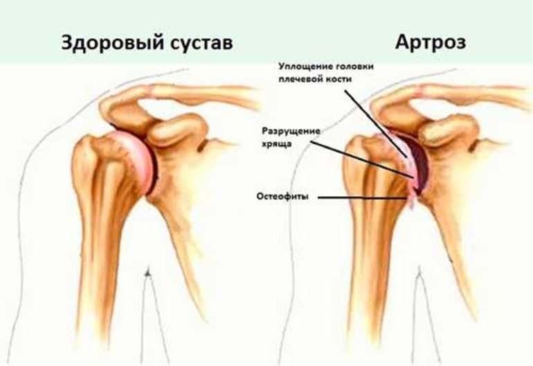 Признаки остеоартроза плечевого сустава