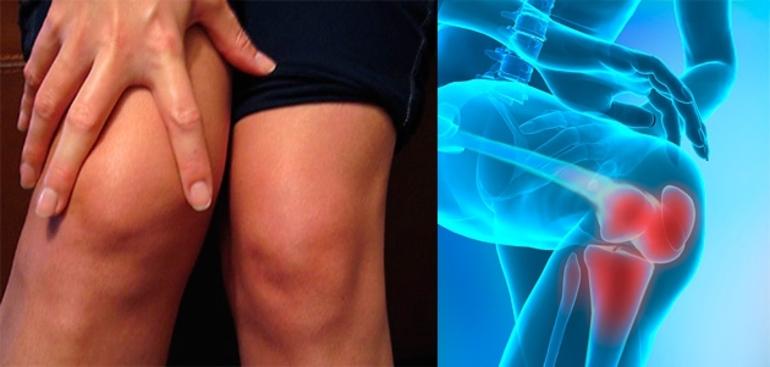 можно ли париться при артрозе коленного сустава