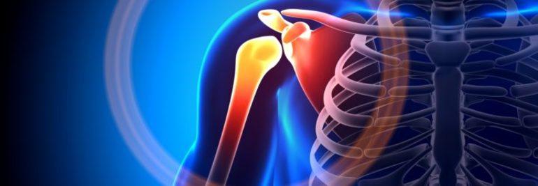 Как проявляется артроз плечевого сустава