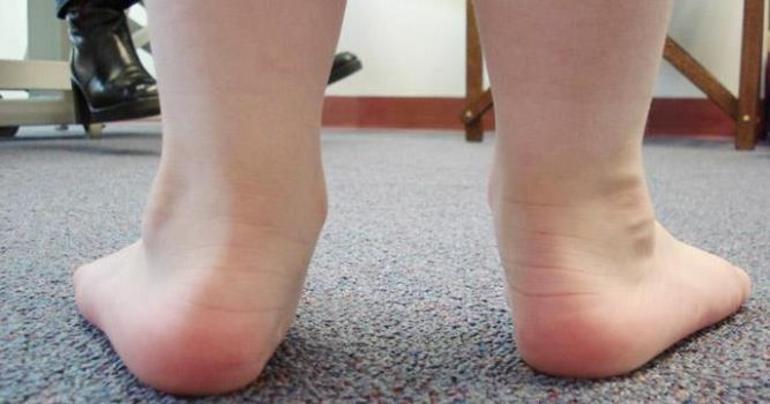 Продромальная стадия плоскостопия