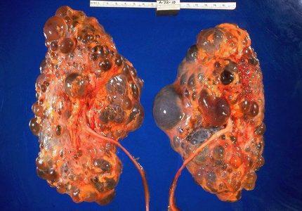 Киста почки: причины, симптомы, лечение
