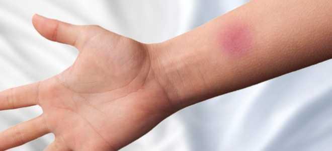 Почему после пробы Манту может болеть рука