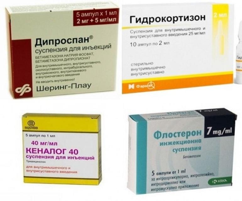 Лекарственные препараты для блокады колена при артрозе