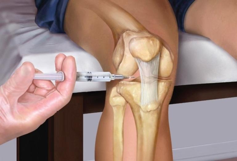 Техника выполнения блокады коленного сустава при артрозе
