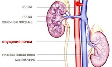 Опущение почки, симптомы и лечение