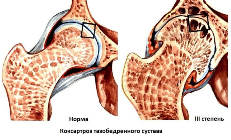 Коксартроз 3 степени тазобедренного сустава