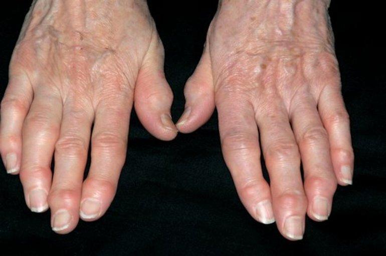Подагра На Руках Лечение Диета. Подагра на руках