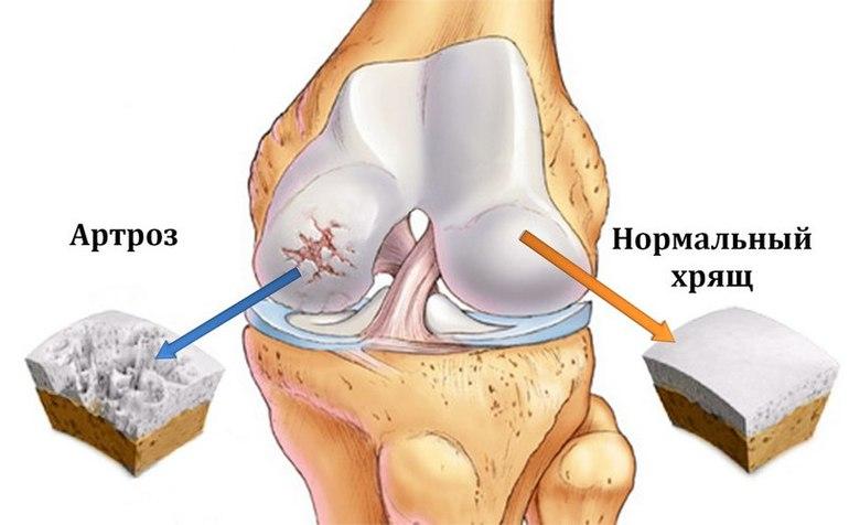 Основные симптомы артроза коленного сустава