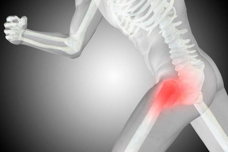 Инвалидность при коксартрозе тазобедренного сустава
