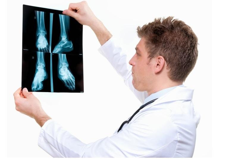 Диагностика артроза плюснефалангового сустава