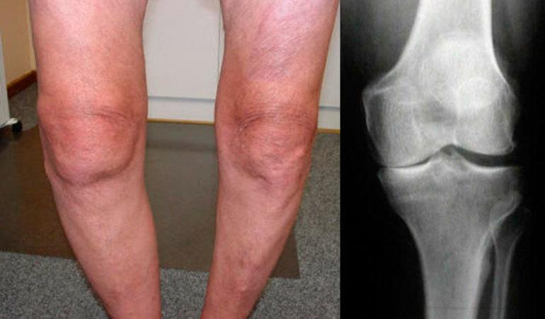 Гонартроз коленного сустава 2 степени инвалидность