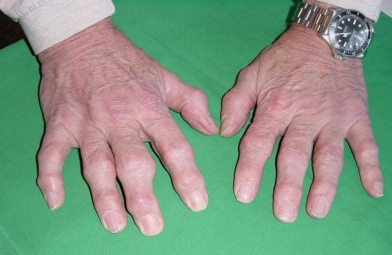 Заболевание артроз суставов